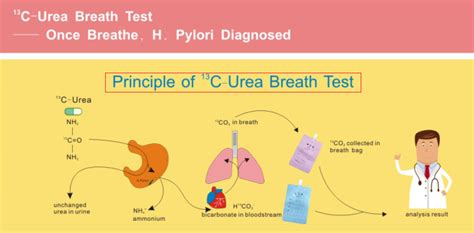 ubt test c13 ubt urea capsule breath test kit for helicobacter