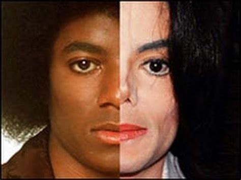 why did michael jackson change his skin color when why and how did michael jackson s skin colour change