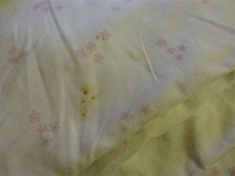 bed bug blood stains blood stain on pillow case need id please 171 got bed bugs bedbugger forums