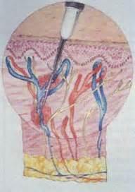 rottura vasi capillari fig 1 iniezioni con aghi normali