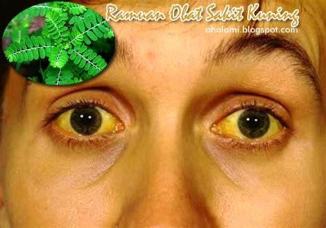 Obat Untuk Mata Kuning ramuan obat alami untuk mengobati sakit kuning hepatitis