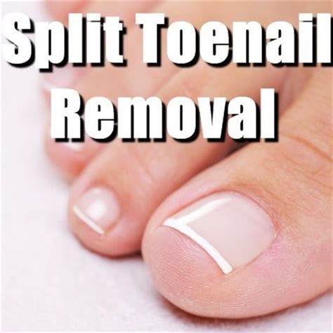 split toenail the doctors split toenail removal procedure excessive drooling