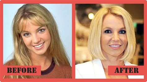 Britneys To Toe Plastic Surgery by Plastic Surgery The Real Story Unveiled