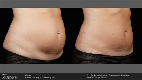 contour light body sculpting before and after top dermatologist in nyc dermatology and laser group