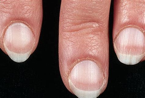 White Nail Beds by Nail Color And Texture What Nails Say About Your Health