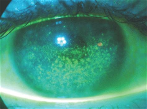 daily disposables: prescribing trends and pipeline lenses