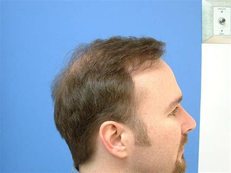 hair style temple bald spots hair loss temples
