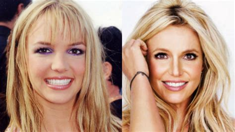 Britneys To Toe Plastic Surgery by Crazyfreelancer This Is The Stuff Everyone S Talking
