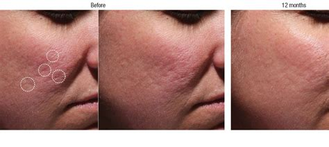 bellafill for results of acne scars q a acne treatment with facial fillers pdo threads