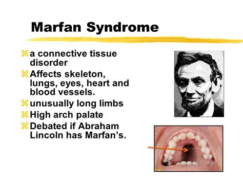 did abraham lincoln marfans human genetics disorders ppt