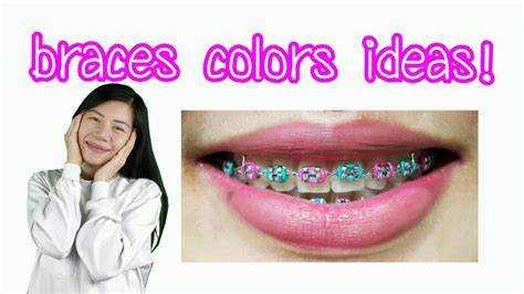 braces color ideas braces colors ideas