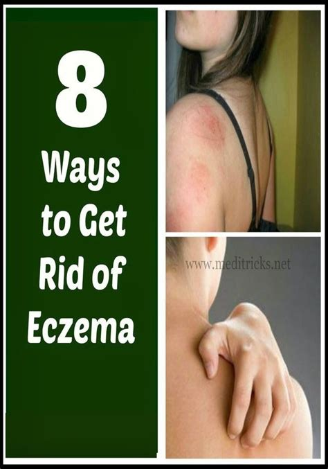 Remede Contre L Humidité 3773 how to get rid of eczema medi tricks fit and healthy