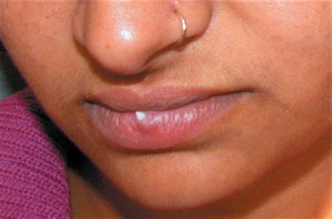 fibroma white raised spot on inner lip white growth on lip yadav s dogra s sarangal r kanwar