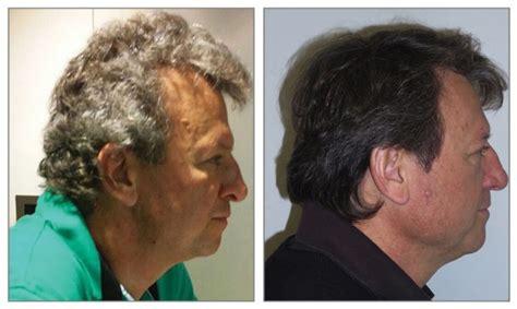 grey hair turning dark again new cancer drugs turn patients gray hair dark again