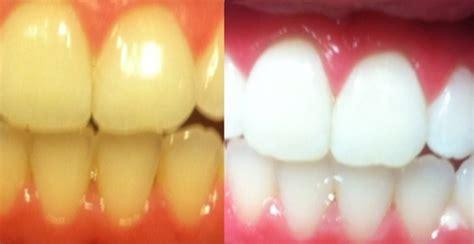 ways  whiten extremely yellow teeth quora