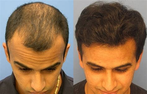 europa sintheric hair transplant hasson wong free hair transplant consultations us