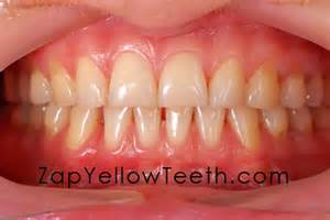 what color should your gums be how to keep your gums and healthy
