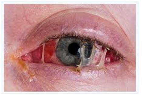 pink eye – dr. adam stewart