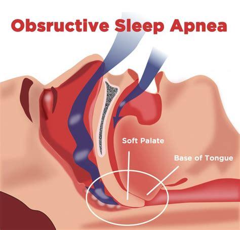 Sleep Apnea by Didgeridoo For Sleep Apnea Clinical Study Didge