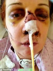 mother of four's miraculous survival after she is speared
