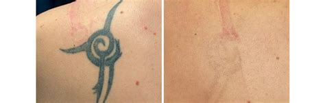 sugar land laser tattoo removal laser removal houston sugar land dr shel