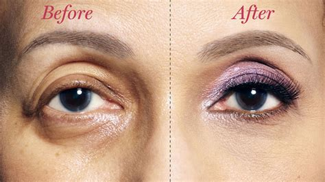 droopy eye how to fix droopy lids how to correct drooping eyelids