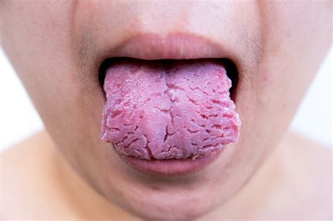 Cracks In Tongue Pictures many cracks on tongue fissured tongue ayurvedic diet