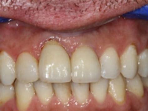 Eigen Tanden Polijsten by Leeuwangh