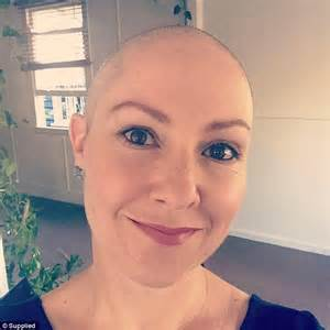 woman shaving her head woman who lost her hair twice to alopecia reveals how