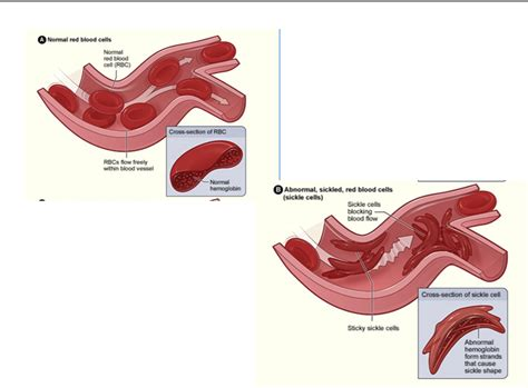 sickle cell diagram lecture 6a protein part 1