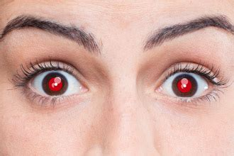 what causes red eyes in photos and how to fix the red eye