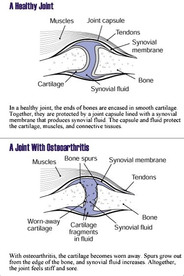 Bony Knobs On Finger Joints by Pseudotumor Cerebri Information Help For Headaches And