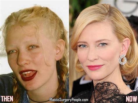 has fiona hughes had plastic surgery has cate blanchett ever had plastic surgery