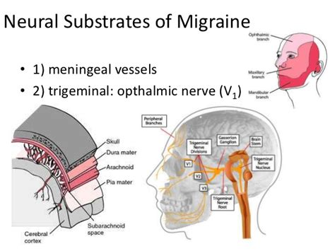 migraine research paper american registry for migraine research paper