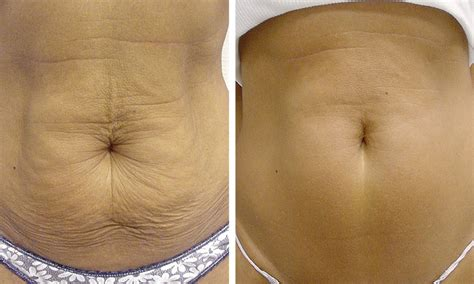 how to get rid of saggy belly after c section thermage skin tightening vein and skin care center
