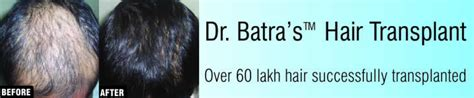 the latest in hair transplantation from dr batra s hair transplant hair loss surgery hair transplantation