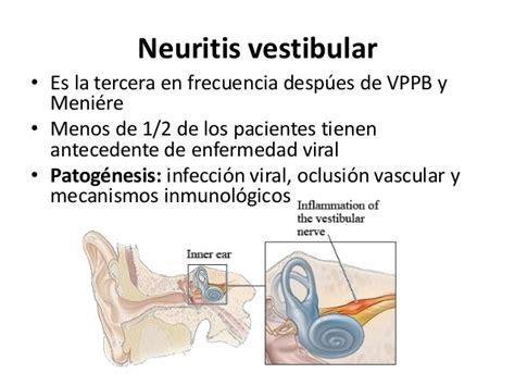 neuritis vestibular tratamiento transtornos vestibulares