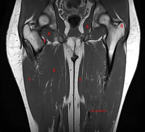 muscolo otturatore interno anatomia della coscia risonanza magnetica con legenda