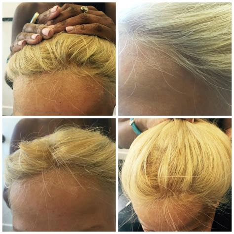 hair weave for front balding pacific hair extensions and hair replacement vancouver