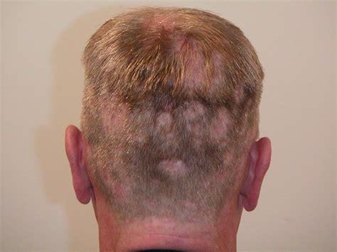moth eaten pattern hair loss moth eaten alopecia