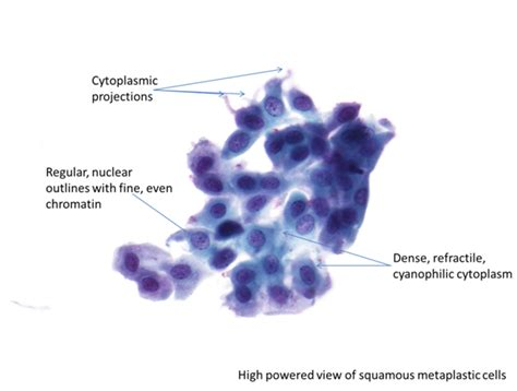 pap test metaplasia 9b normal cytology and benign reactive changes eurocytology