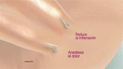 anestesia dolor nikzon tv commercial anestesia para el dolor ispot tv