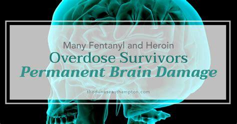 Fentanyl Detox Protocol by Fentanyl Heroin Overdose Survivors Suffering Permanent