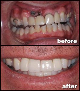 cosmetic dental implants feild family dentistry