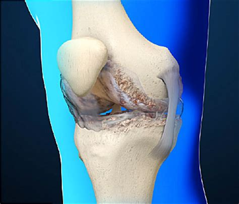 electrical problems surgery osteoarthritis causes and treatments of joint