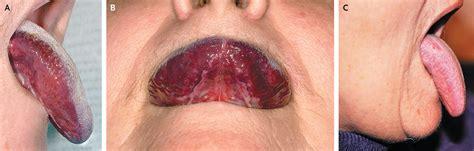hematoma after c section hematoma