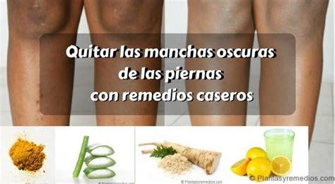 tratamientos tratamientos para las manchas remedios caseros para quitar las manchas oscuras en las