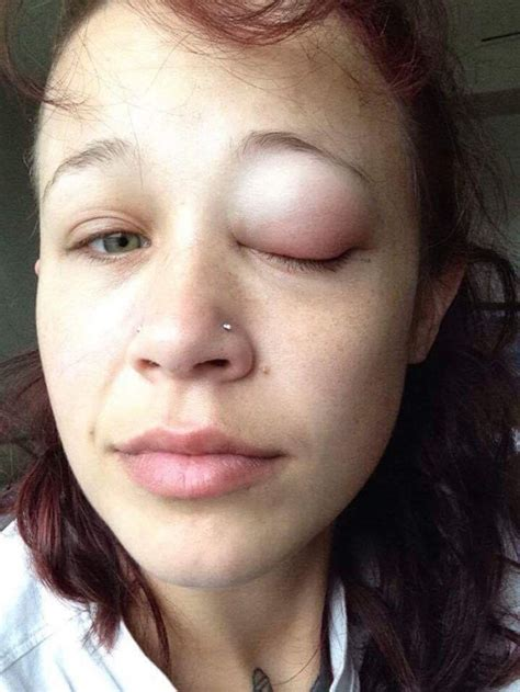 model shows off photos of her failed eyeball tattoo