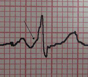 innere medizin kk: wpw – wikibooks, sammlung freier lehr