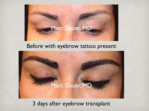 eyebrow transplant spiky hairs eyebrow transplantantation archives eyebrow transplant